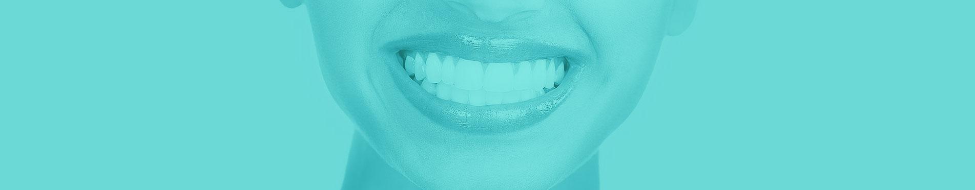 بنر بلیچینگ دندان