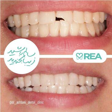 نمونه قبل و بعد درمان زیبایی دندان