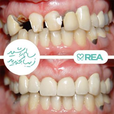 نمونه قبل و بعد بازسازی دندانهای تخریب شده و روکش بدون کشیدن دندانها