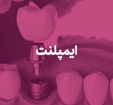 بنر مربوط به ایمپلنت دندان