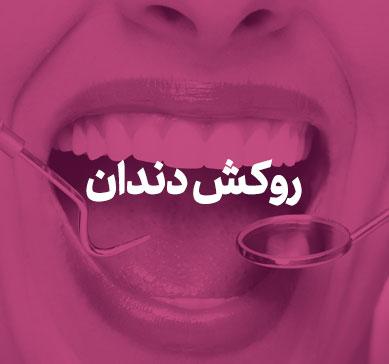 بنر مربوط به روکش دندان