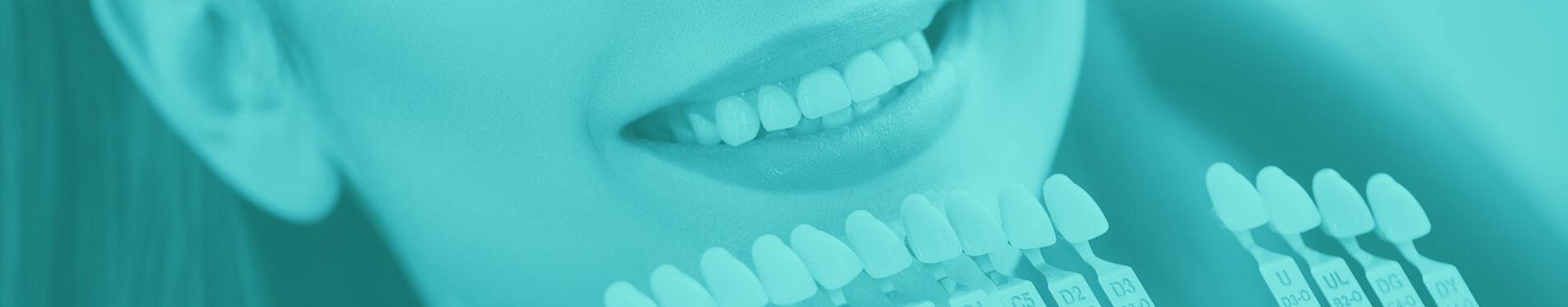 بنر روکش دندان