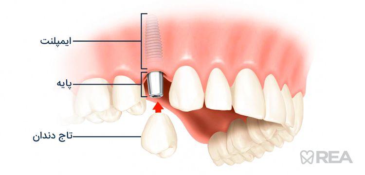 بنر مراحل جاگذاری ایمپلنت دندانی