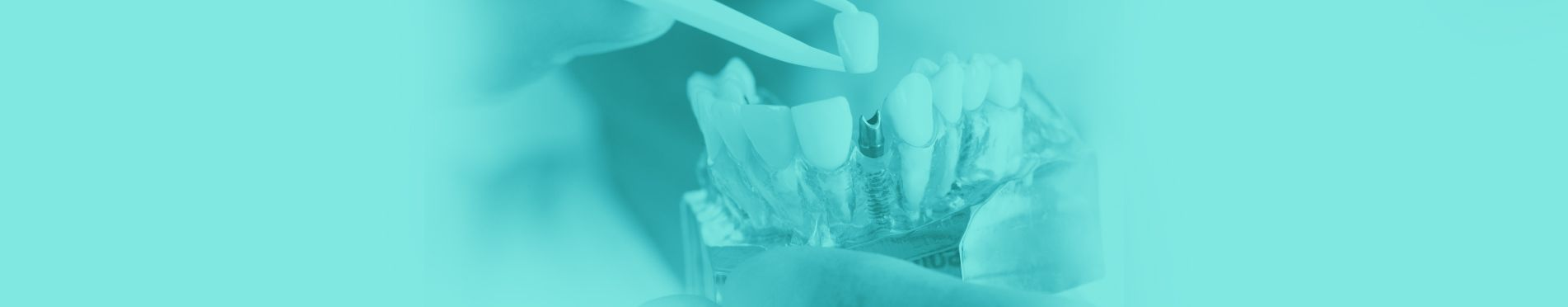بنر ایمپلنت دندان