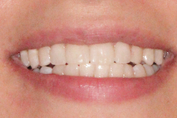 نمونه بعد درمان زیبایی دندان
