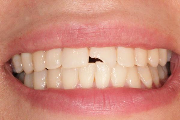 نمونه قبل درمان زیبایی دندان