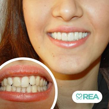 قبل و بعد طراحی لبخند