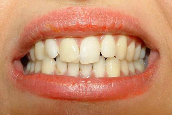تصویر قبل از طراحی لبخند