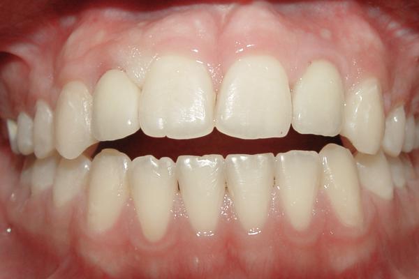 نمونه بعد ارتودنسی و ایمپلنت برای دندانهایی که به صورت مادرزادی رشد نکردهاند
