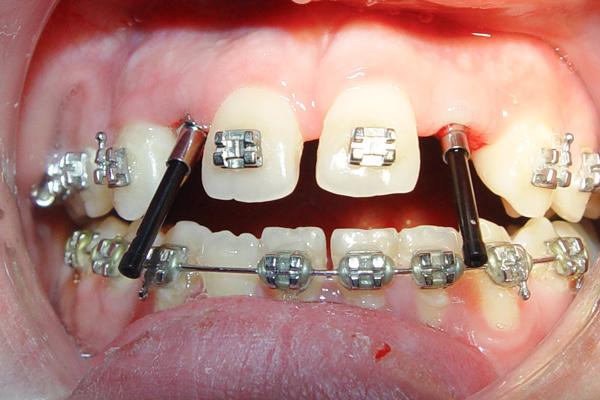 نمونه قبل ارتودنسی و ایمپلنت برای دندانهایی که به صورت مادرزادی رشد نکردهاند
