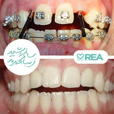 نمونه قبل و بعد ارتودنسی و ایمپلنت برای دندانهایی که به صورت مادرزادی رشد نکردهاند