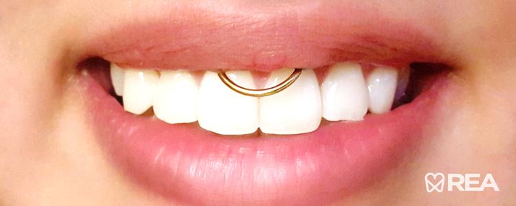 انواع پیرسینگ دهان