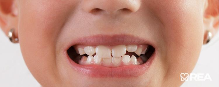 دندان دائمی چه زمانی رشد میکند؟