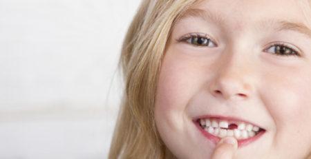 نکاتی که والدین باید درباره دندانهای دائمی بدانند