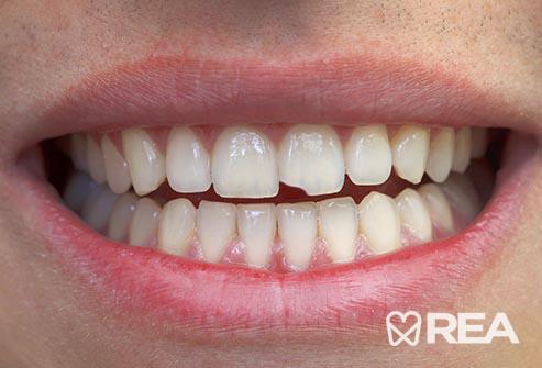 پریدن لبه دندانها