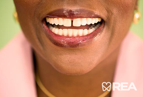 دندانهای کج شده