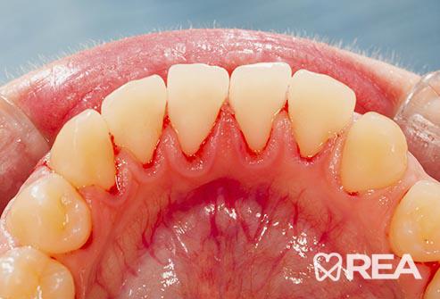 فاصله میان دندانها