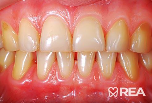 لکههای روی دندانها