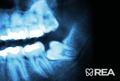 دندان نابالغ