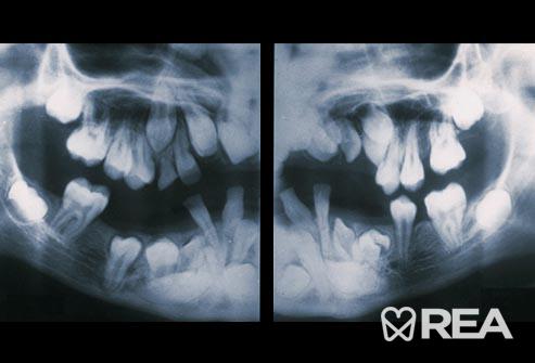 تعداد بیش از حد دندان (هایپردونتیا)