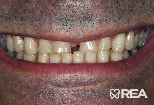 دندانقروچه