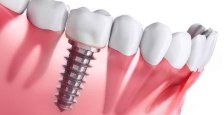 چرا هزینه ایمپلنت دندان گران است؟