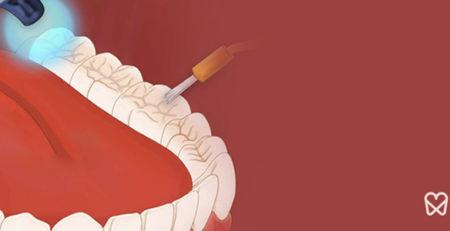 سیلانت دندان – روشی بسیار موثر برای مهار پوسیدگی دندان
