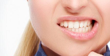 بروکسیسم یا دندانقروچه چیست؟