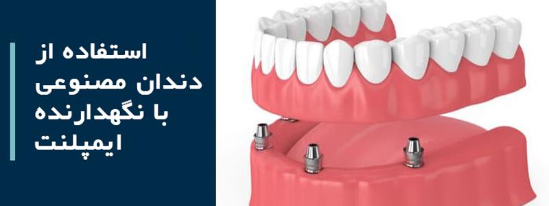 جایگزین کردن همه دندانها: استفاده از دندان مصنوعی با نگهدارنده ایمپلنت