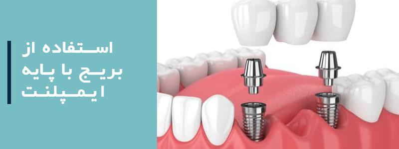 جایگزین کردن چند دندان : استفاده از بریج با پایه ایمپلنت