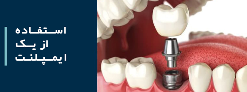 جایگزین کردن یک دندان: استفاده از یک ایمپلنت