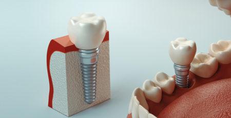 سه نوع ایمپلنت دندان (روش مناسب برای شما)