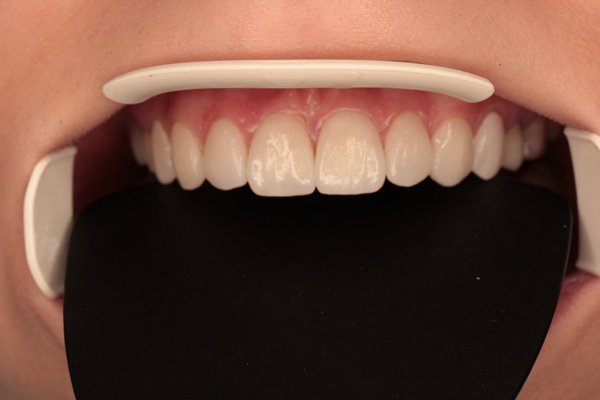 نمونه اصلاح طرح لبخند - بعد