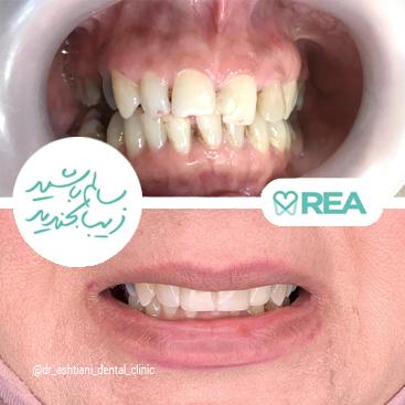 نمونه قبل و بعد لمینیت کامپوزیتی و روکش دندان
