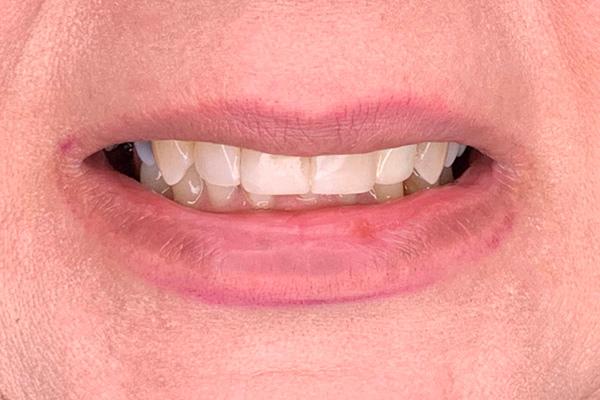 نمونه لمینیت کامپوزیتی و روکش دندان - بعد