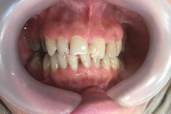 نمونه لمینیت کامپوزیتی و روکش دندان - قبل