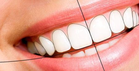 طراحی لبخند - با انواع روشهای طراحی لبخند بیشتر آشنا شوید