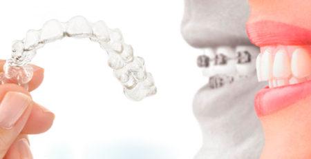 سفید کردن دندانها: قبل یا بعد از ارتودنسی نامرئی