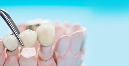 ایمپلنت فول موس - نحوه درمان، مزایا و هزینه ایملپنت کامل دهان