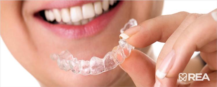 ورزش کردن بدون محافظ دندان